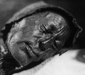 Tollund man - well preserved 3000 year old body